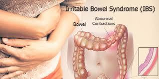 How Can I Cure IBS Permanently